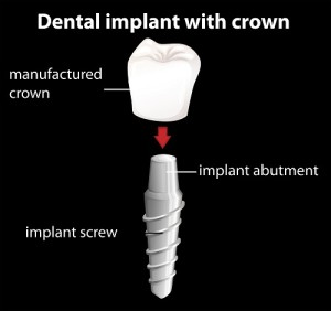 An illustration of the dental implant and its parts.
