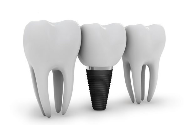 dental implant provider in washington dc